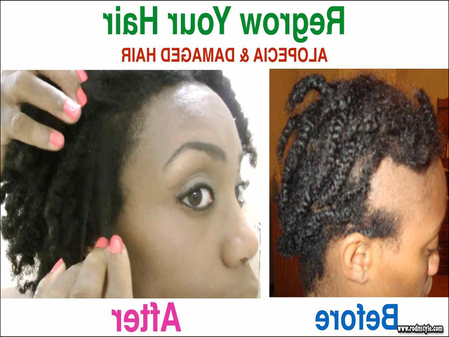 Hairstyles For Alopecia Sufferers 8