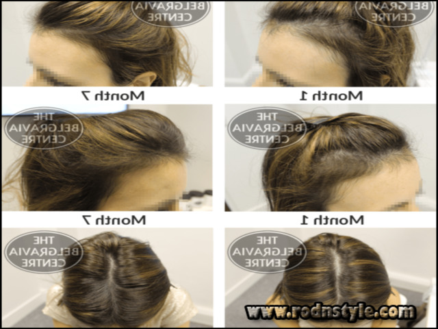 Image for Learn Exactly How I Improved Hairstyles For Alopecia Sufferers In 2 Days