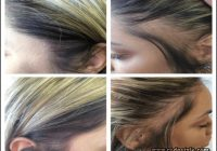 Hairstyles For Alopecia Sufferers 10
