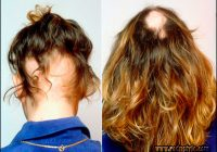 Hairstyles For Alopecia Sufferers 12