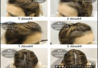 Hairstyles For Alopecia Sufferers 9