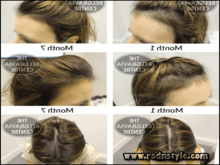 Permalink to Learn Exactly How I Improved Hairstyles For Alopecia Sufferers In 2 Days