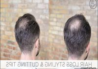 Hairstyles For Thinning Crown 6
