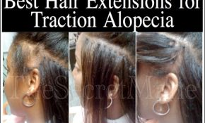 Hairstyles For Alopecia Sufferers 2