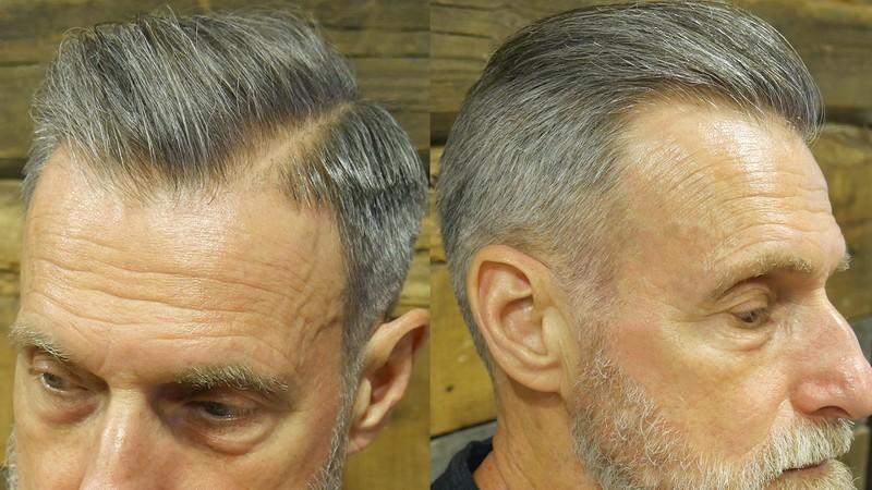 Older-MenS-Undercut-Haircut Older Men'S Undercut Haircut