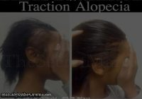 Hairstyles For Alopecia Sufferers 0